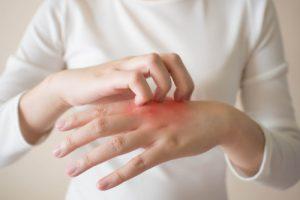 Benefits of Zinc Oxide - Irritated skin