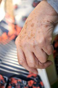 Benefits of Zinc Oxide - Age spots